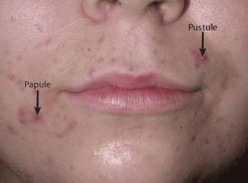 Are you breaking out? These surprisingly simple reasons could be why you have adult acne 5
