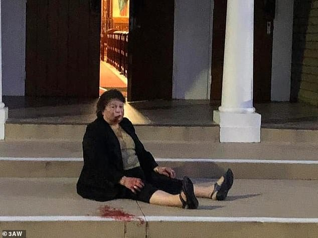 Grandmother who was viciously attacked outside her church may never recover from the injuries